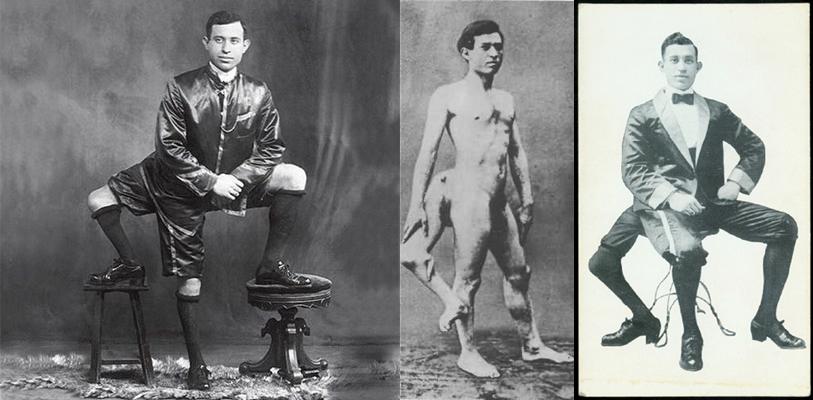 circus-freak-Francesco-Lentini-three-legs-horz